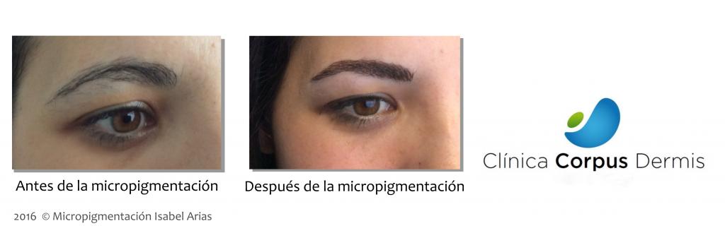 Maquillaje permanente en pozuelo